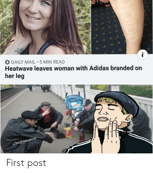 First Post: 12  DAILY MAIL 5 MIN READ  Heatwave leaves woman with Adidas branded on  her leg  u/Toughlawyercat First post