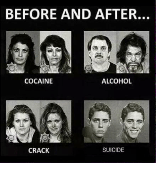 Cocaines: BEFORE AND AFTER.  ALCOHOL  COCAINE  CRACK  SUICIDE