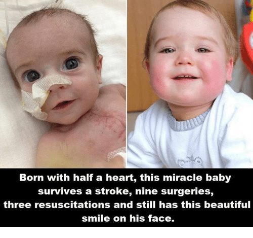 resuscitation: Born with half a heart, this miracle baby  survives a stroke, nine surgeries,  three resuscitations and still has this beautiful  smile on his face.