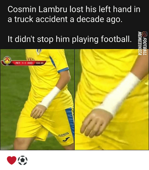 Anaconda, Football, and Memes: Cosmin Lambru lost his left hand in  a truck accident a decade ago  It didn't stop him playing football.  VCN  PET 1-1 MIO 100:35 ❤⚽️