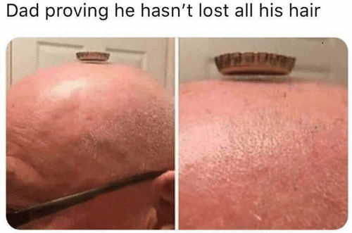 Dad, Dank, and Lost: Dad proving he hasn't lost all his hair