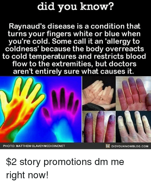 promotions: did you know?  Raynaud's disease is a condition that  turns your fingers white or blue when  you're cold. Some call it an 'allergy to  coldness' because the body overreacts  to cold temperatures and restricts blood  flow to the extremities, but doctors  aren't entirely sure what causes it.  PHOTO: MATTHEW CLAVEYIMEDICINENET  DIDYOUKNOWBLOG.COM $2 story promotions dm me right now!