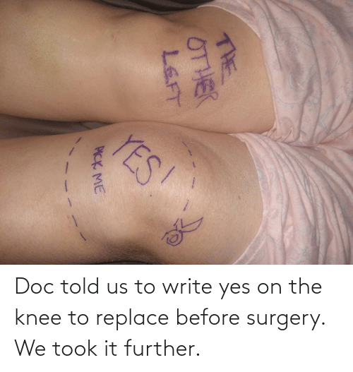 Knee: Doc told us to write yes on the knee to replace before surgery. We took it further.