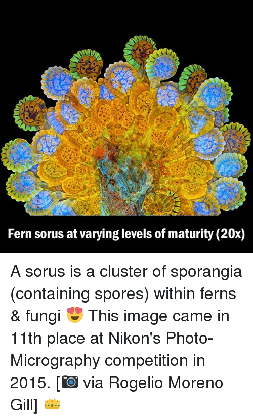 Memes, Image, and 🤖: Fern sorus atvarying levels of maturity (20x) A sorus is a cluster of sporangia (containing spores) within ferns & fungi 😍 This image came in 11th place at Nikon's Photo-Micrography competition in 2015. [📷 via Rogelio Moreno Gill] 👑