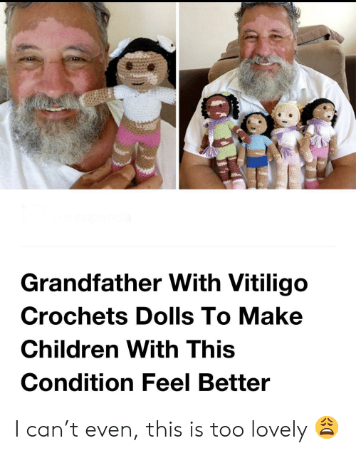Children, Can, and Vitiligo: Grandfather With Vitiligo  Crochets Dolls To Make  Children With This  Condition Feel Better I can't even, this is too lovely 😩