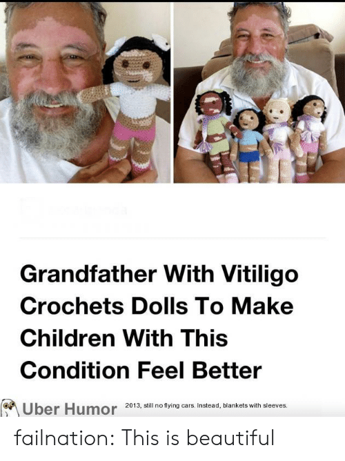 This Is Beautiful: Grandfather With Vitiligo  Crochets Dolls To Make  Children With This  Condition Feel Better  2013, still no flying cars. Instead, blankets with sleeves.  Uber Humor failnation:  This is beautiful