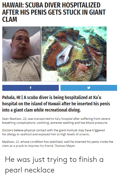 scuba: HAWAIL: SCUBA DIVER HOSPITALIZED  AFTER HIS PENIS GETS STUCK IN GIANT  Pahala, HI | A scuba diver is being hospitalized at Ka'u  hospital on the island of Hawaii after he inserted his penis  into a giant clam while recreational diving.  Sean Madison, 22, was transported to Ka'u hospital after suffering from severe  breathing complications, vomiting, extreme swelling and low blood pressure.  Doctors believe physical contact with the giant mollusk may have triggered  his allergy to seafood and exposed him to high levels of arsenic.  Madison, 22, whose condition has stabilized, said he inserted his penis inside the  clam as a prank to impress his friend, Thomas Meyer. He was just trying to finish a pearl necklace
