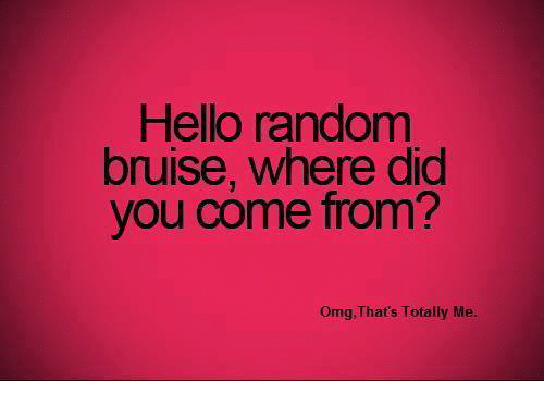 Did You Come From: Hello randomm  bruise, where did  you come from?  Omg, That's Totally Me.