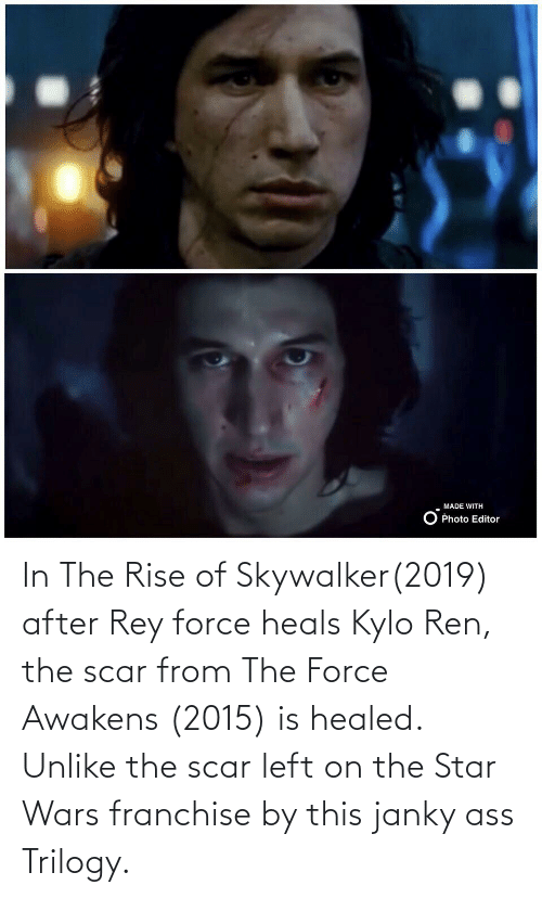 Kylo Ren: In The Rise of Skywalker(2019) after Rey force heals Kylo Ren, the scar from The Force Awakens (2015) is healed. Unlike the scar left on the Star Wars franchise by this janky ass Trilogy.