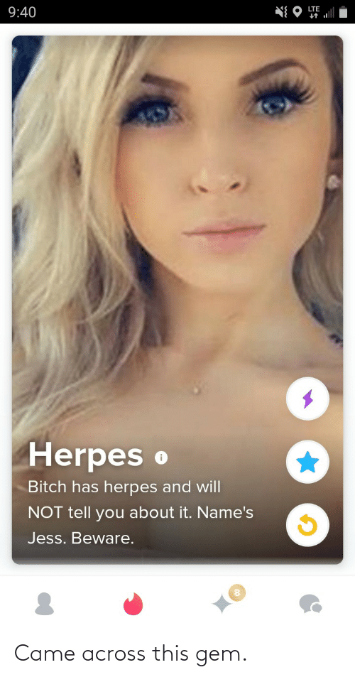 Herpes, Lte, and Gem: LTE  9:40  Herpes o  Bitch has herpes and will  NOT tell you about it. Name's  Jess. Beware. Came across this gem.