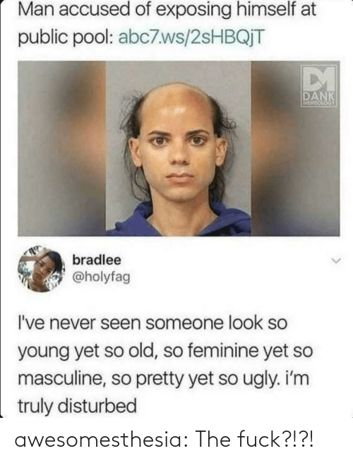 Ugly: Man accused of exposing himself at  public pool: abc7.ws/2SHBQJT  DM  DANK  MEMEOCOGY  bradlee  @holyfag  I've never seen someone look so  young yet so old, so feminine yet so  masculine, so pretty yet so ugly. i'm  truly disturbed awesomesthesia:  The fuck?!?!