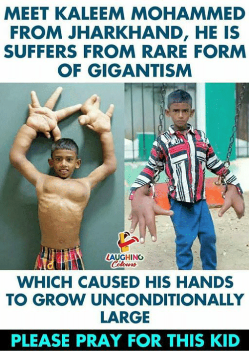 gigantism: MEET KALEEM MOHAMMED  FROM JHARKHAND, HE IS  SUFFERS FROM RARE FORM  OF GIGANTISM  LAUGHINC  WHICH CAUSED HIS HANDS  TO GROW UNCONDITIONALLY  LARGE  PLEASE PRAY FOR THIS KID