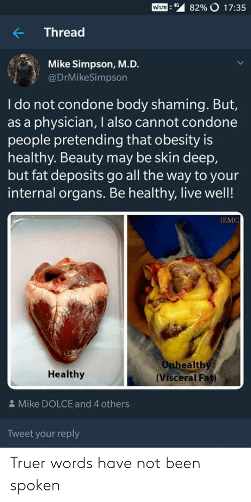 Truer Words: Mom : 49  82% o 17:35  Thread  Mike Simpson, M.D.  @DrMikeSimpson  I do not condone body shaming. But,  as a physician, I also cannot condone  people pretending that obesity is  healthy. Beauty may be skin deep,  but fat deposits go all the way to your  internal organs. Be healthy, live well!  IEMC  ealth  Healthy  (Visceral Fat)  & Mike DOLCE and 4 others  Tweet your reply Truer words have not been spoken