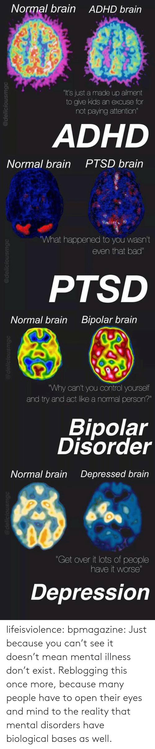 """bipolar disorder: Normal brain  ADHD brain  """"It's just a made up ailment  to give kids an excuse for  not paying attention""""  ADHD   Normal brain  PTSD brain  What happened to you wasn't  even that bad""""  PTSD   Normal brain  Bipolar brain  Why can't you control yourself  and try and act like a normal person?""""  Bipolar  Disorder   Normal brain  Depressed brain  """"Get over it lots of people  have it worse""""  Depression lifeisviolence:  bpmagazine:   Just because you can't see it doesn't mean mental illness don't exist.   Reblogging this once more, because many people have to open their eyes and mind to the reality that mental disorders have biological bases as well."""
