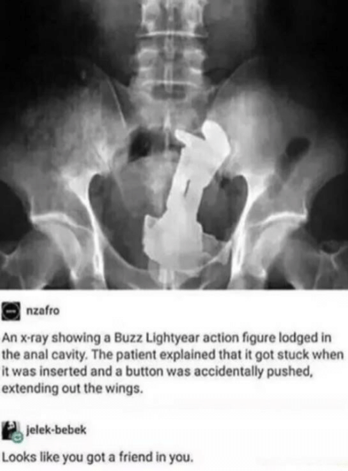 x-ray: nzafro  An x-ray showing a Buzz Lightyear action figure lodged in  the anal cavity. The patient explained that it got stuck when  it was inserted and a button was accidentally pushed,  extending out the wings.  jelek-bebek  Looks like you got a friend in you.
