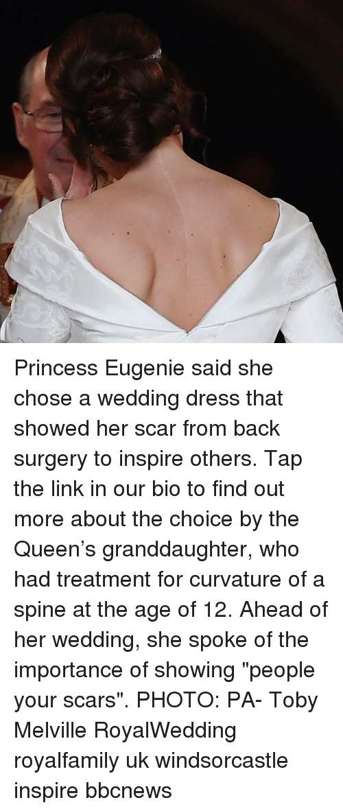 """Memes, Queen, and Dress: Princess Eugenie said she chose a wedding dress that showed her scar from back surgery to inspire others. Tap the link in our bio to find out more about the choice by the Queen's granddaughter, who had treatment for curvature of a spine at the age of 12. Ahead of her wedding, she spoke of the importance of showing """"people your scars"""". PHOTO: PA- Toby Melville RoyalWedding royalfamily uk windsorcastle inspire bbcnews"""