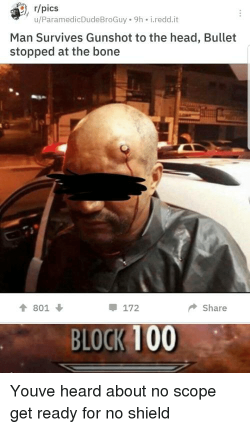 Block 100: , r/pics  u/ParamedicDudeBroGuy 9h i.redd.it  Man Survives Gunshot to the head, Bullet  stopped at the bone  會801 ↓  172  ◆ Share  BLOCK 100 Youve heard about no scope get ready for no shield