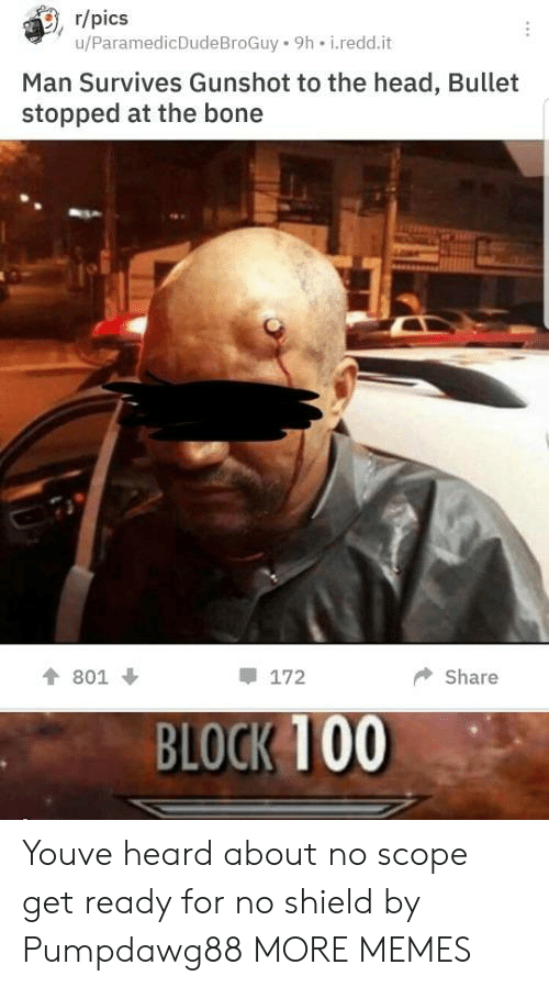 Anaconda, Dank, and Head: , r/pics  u/ParamedicDudeBroGuy 9h i.redd.it  Man Survives Gunshot to the head, Bullet  stopped at the bone  會801 ↓  172  ◆ Share  BLOCK 100 Youve heard about no scope get ready for no shield by Pumpdawg88 MORE MEMES