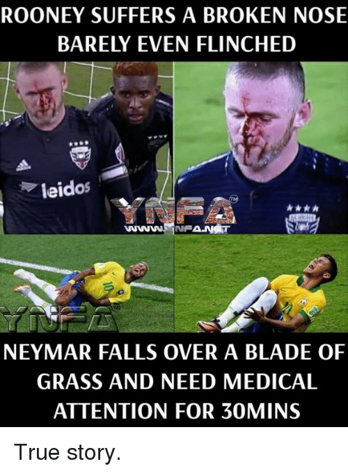 rooney: ROONEY SUFFERS A BROKEN NOSE  BARELY EVEN FLINCHED  leidos  wwwNFA.NST  NEYMAR FALLS OVER A BLADE OF  GRASS AND NEED MEDICAL  ATTENTION FOR 30MINS True story.