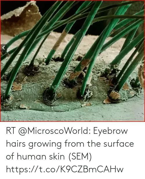 skin: RT @MicroscoWorld: Eyebrow hairs growing from the surface of human skin (SEM) https://t.co/K9CZBmCAHw