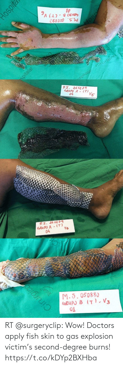 skin: RT @surgeryclip: Wow! Doctors apply fish skin to gas explosion victim's second-degree burns! https://t.co/kDYp2BXHba
