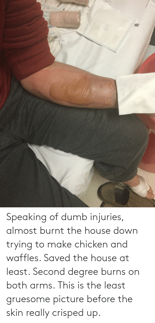 waffles: Speaking of dumb injuries, almost burnt the house down trying to make chicken and waffles. Saved the house at least. Second degree burns on both arms. This is the least gruesome picture before the skin really crisped up.