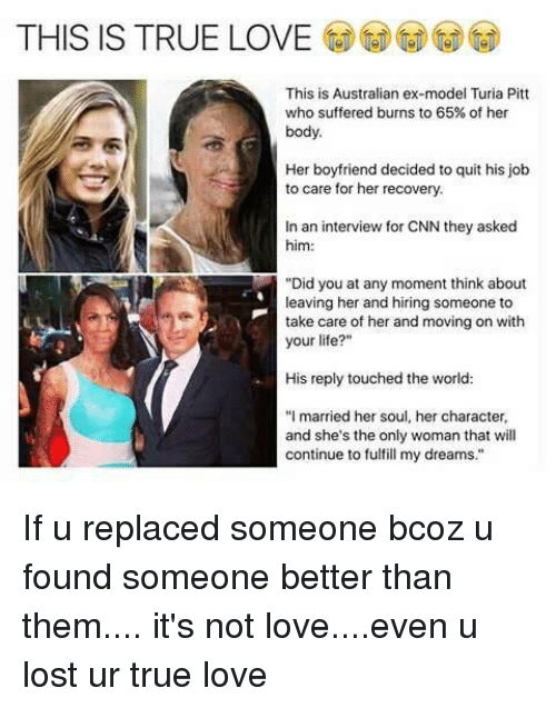 This Is True Love This Is Australian Ex Model Turia Pitt Who Suffered Burns To 65 Of Her Body Her Boyfriend Decided To Quit His Job To Care For Her Recovery In An