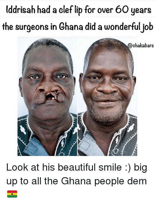 Big Up: Uddrisah had a clef lib for over 60 years  the surgeons in Ghana did a wonderfuljob  @chakabars Look at his beautiful smile :) big up to all the Ghana people dem 🇬🇭