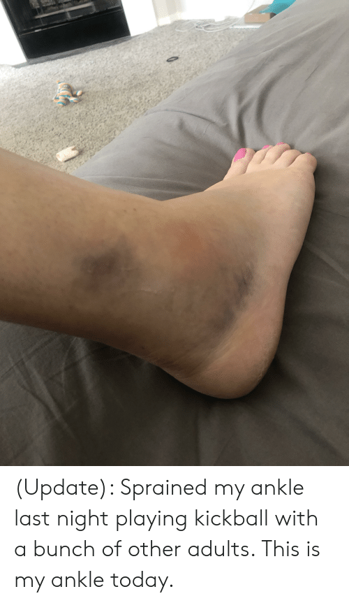 Today, Last Night, and Kickball: (Update): Sprained my ankle last night playing kickball with a bunch of other adults. This is my ankle today.