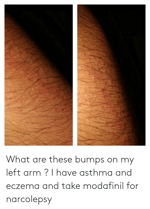 arm: What are these bumps on my left arm ? I have asthma and eczema and take modafinil for narcolepsy