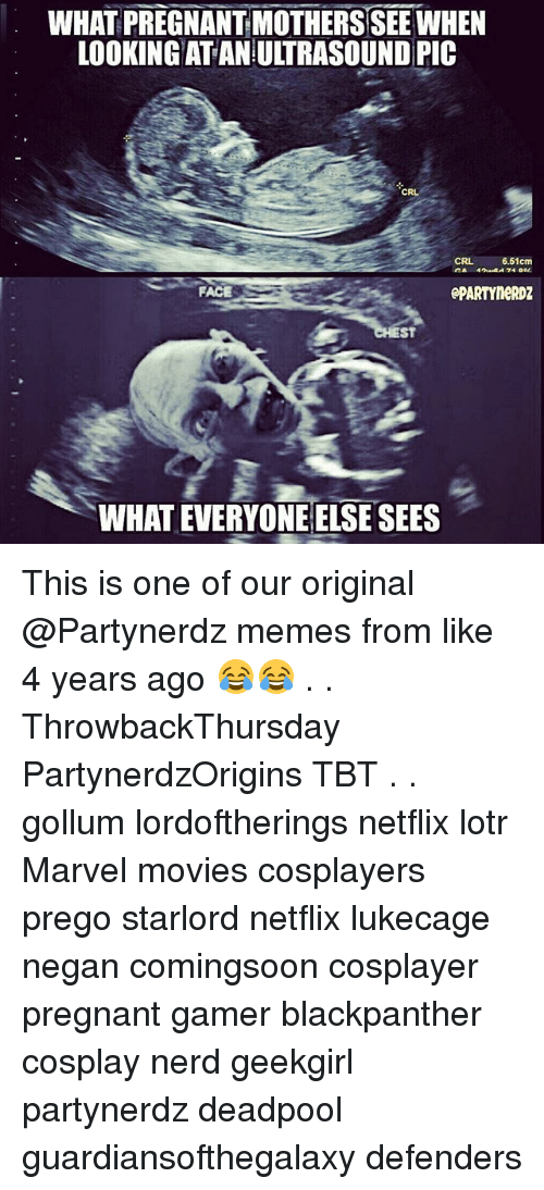 prego: WHAT PREGNANT MOTHERS SEE WHEN  LOOKING AT AN ULTRASOUND PIC  CRL  CRL  6.51cm  ACE  ePARTYNeRDZ  ST  WHAT EVERYONE ELSE SEES This is one of our original @Partynerdz memes from like 4 years ago 😂😂 . . ThrowbackThursday PartynerdzOrigins TBT . . gollum lordoftherings netflix lotr Marvel movies cosplayers prego starlord netflix lukecage negan comingsoon cosplayer pregnant gamer blackpanther cosplay nerd geekgirl partynerdz deadpool guardiansofthegalaxy defenders