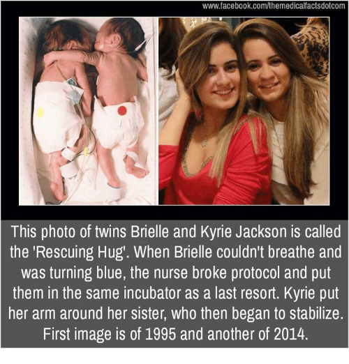 "imags: www.facebook.com/themedicalfactsdotcom  This photo of twins Brielle and Kyrie Jackson is called  the ""Rescuing Hug'. When Brielle couldn't breathe and  was turning blue, the nurse broke protocol and put  them in the same incubator as a last resort. Kyrie put  her arm around her sister, who then began to stabilize.  First image is of 1995 and another of 2014."