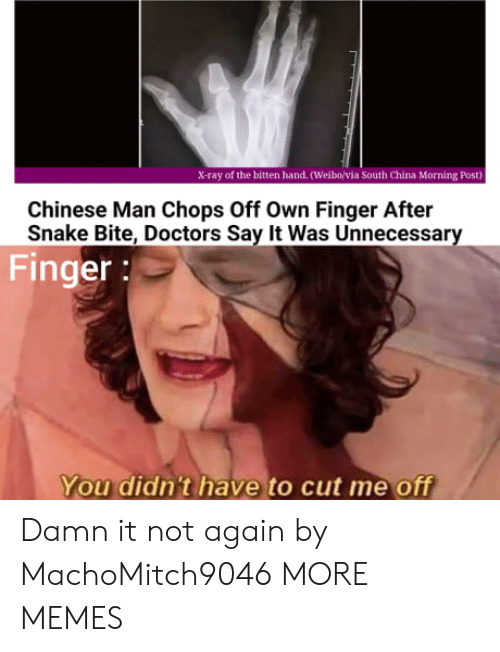 Dank, Memes, and Target: X-ray of the bitten hand. (Weibo/via South China Morning Post)  Chinese Man Chops Off Own Finger After  Snake Bite, Doctors Say It Was Unnecessary  Finger:  You didn't have to cut me off Damn it not again by MachoMitch9046 MORE MEMES